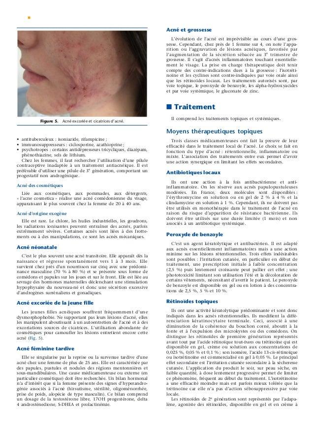 Le manuel du généraliste 2 dermatologie