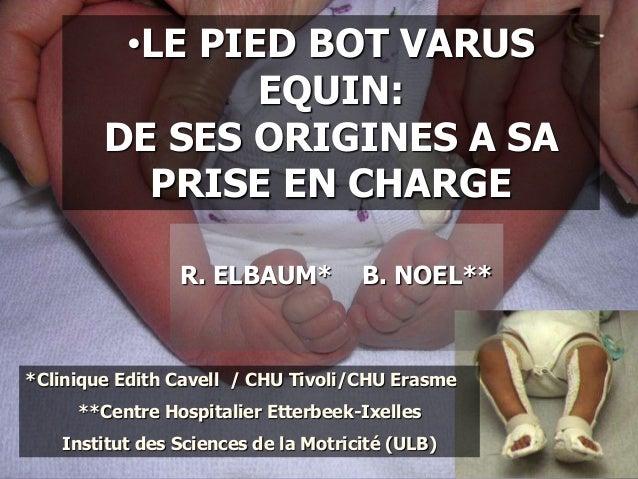 •LE PIED BOT VARUS EQUIN: DE SES ORIGINES A SA PRISE EN CHARGE R. ELBAUM* B. NOEL** *Clinique Edith Cavell / CHU Tivoli/CH...