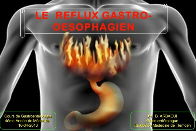 LE REFLUX GASTRO-OESOPHAGIENCours de GastroentérologieCours de Gastroentérologie4éme Année de Médecine4éme Année de Médeci...
