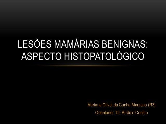 Mariana Olival da Cunha Marzano (R3) Orientador: Dr. Afrânio Coelho LESÕES MAMÁRIAS BENIGNAS: ASPECTO HISTOPATOLÓGICO