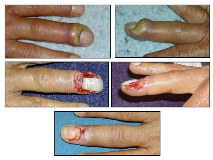 Le traitement du microorganisme végétal des talons les préparations