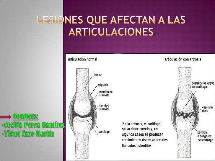 Lesiones que afectan a las articulaciones