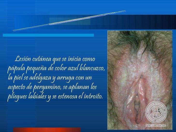 Lesion on vagina - Dermatology - MedHelp