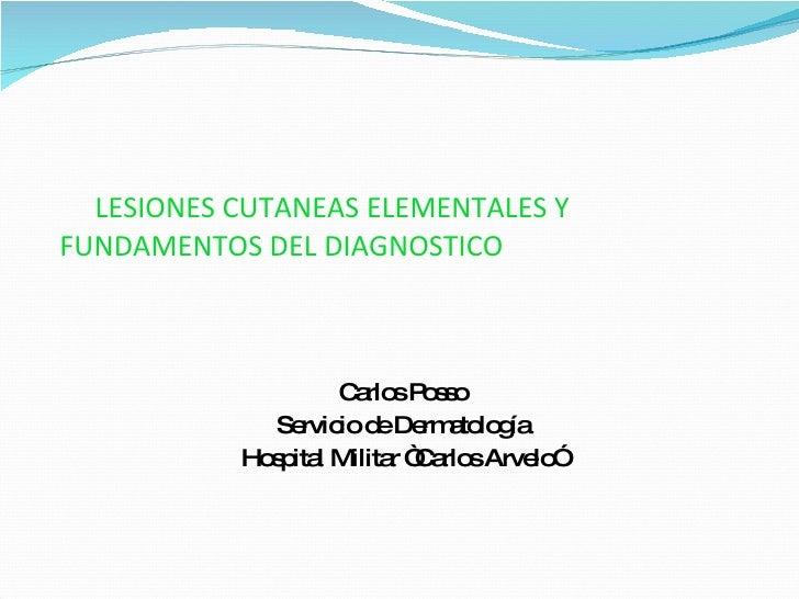 """LESIONES CUTANEAS ELEMENTALES Y  FUNDAMENTOS DEL DIAGNOSTICO Carlos Posso Servicio de Dermatología Hospital Militar """"Carlo..."""
