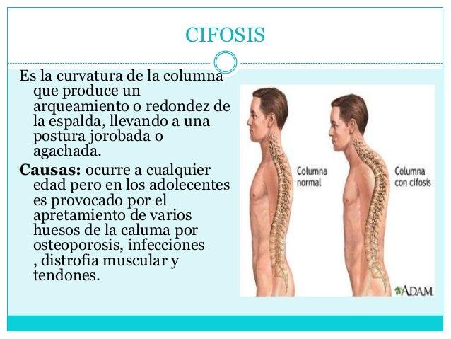 El tratamiento del golpe de la espalda