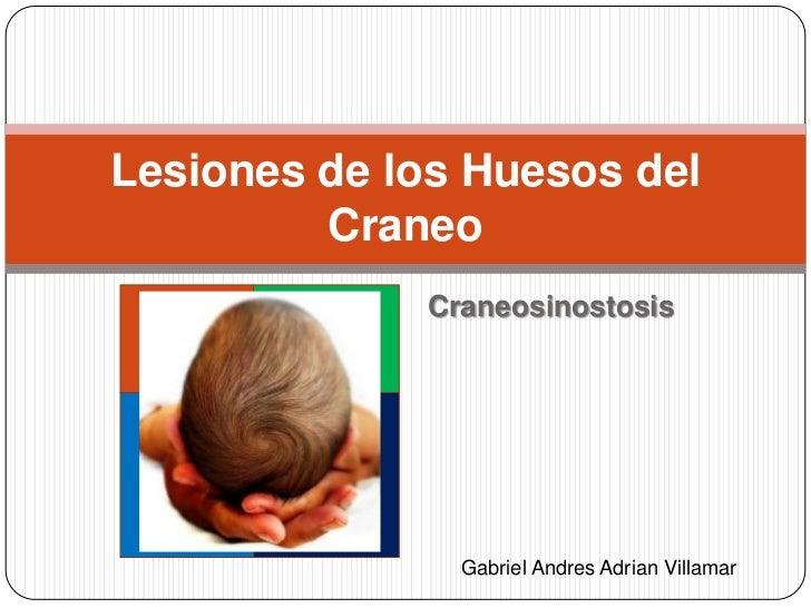 Lesiones de los Huesos del         Craneo             Craneosinostosis               Gabriel Andres Adrian Villamar