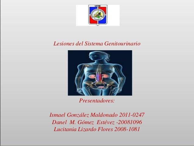 Lesiones del Sistema Genitourinario Presentadores: Ismael González Maldonado 2011-0247 Danel M. Gómez Estévez -20081096 Lu...