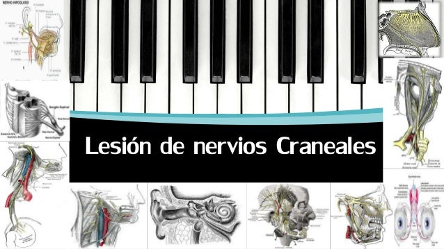 Lesiones de pares craneales final(1)