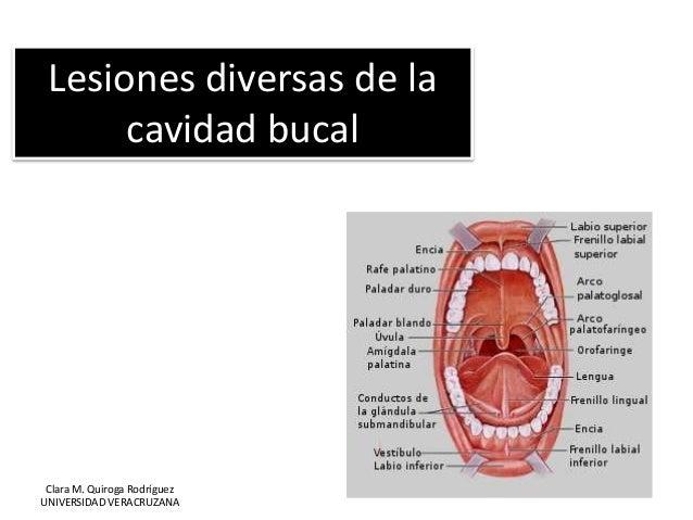 Lesiones diversas de la cavidad bucal Clara M. Quiroga Rodríguez UNIVERSIDAD VERACRUZANA