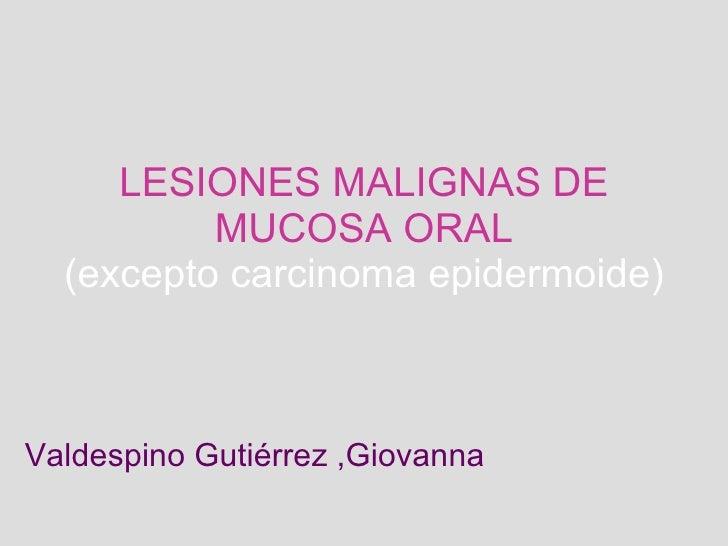 LESIONES MALIGNAS DE MUCOSA ORAL (excepto carcinoma epidermoide) Valdespino Gutiérrez ,Giovanna