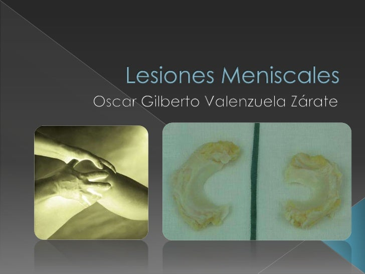 Lesiones Meniscales<br />Oscar Gilberto Valenzuela Zárate<br />