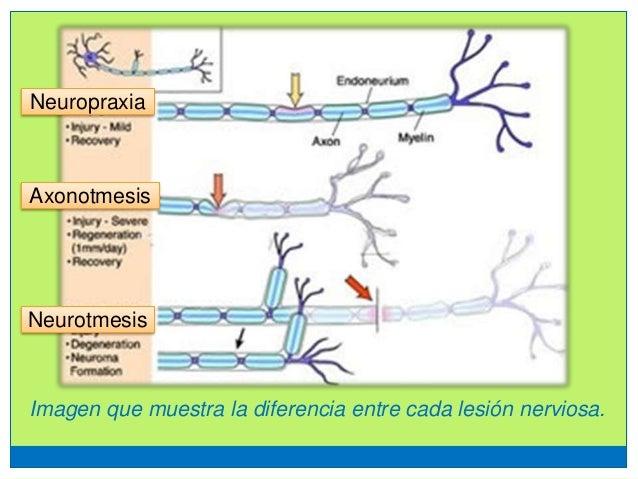Lesiones nerviosas UP Med