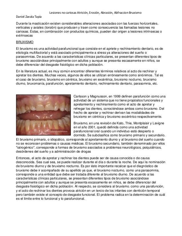 Lesiones no cariosas Atrición, Erosión, Abrasión, Abfraccion Bruxismo Daniel Zavala Tapia Durante la masticación existen c...