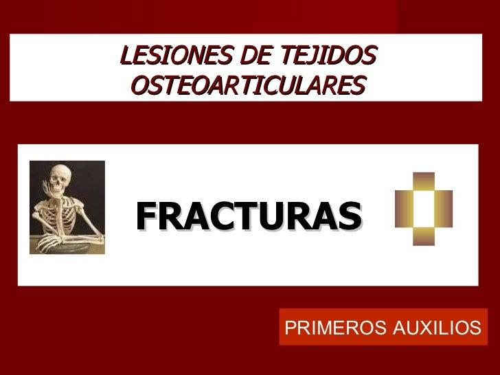 LESIONES DE TEJIDOS OSTEOARTICULARES FRACTURAS PRIMEROS AUXILIOS