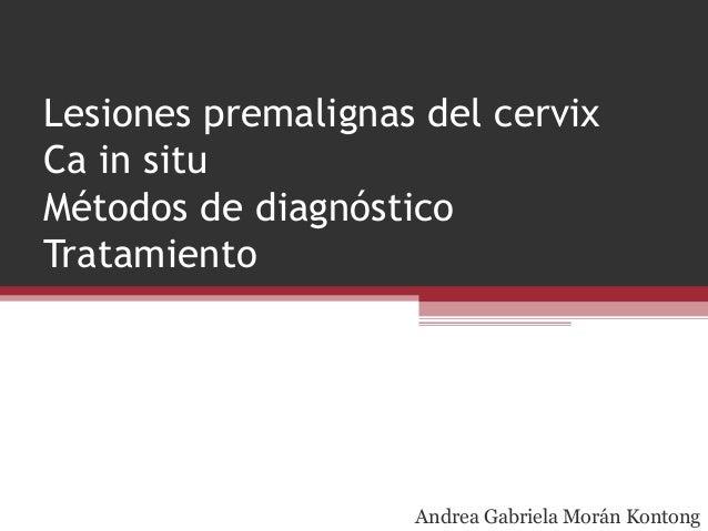 Lesiones premalignas del cervix Ca in situ Métodos de diagnóstico Tratamiento Andrea Gabriela Morán Kontong