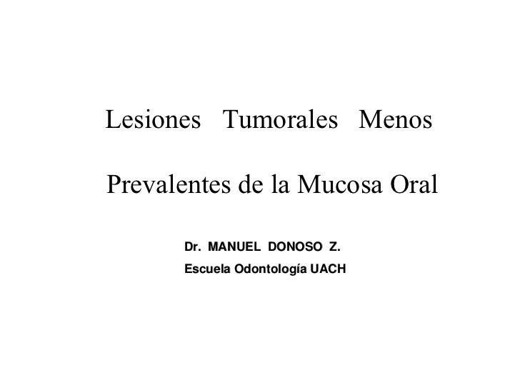 Lesiones Tumorales Menos  Prevalentes de la Mucosa Oral        Dr. MANUEL DONOSO Z.       Escuela Odontología UACH
