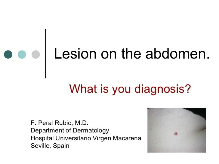 Lesion on the abdomen
