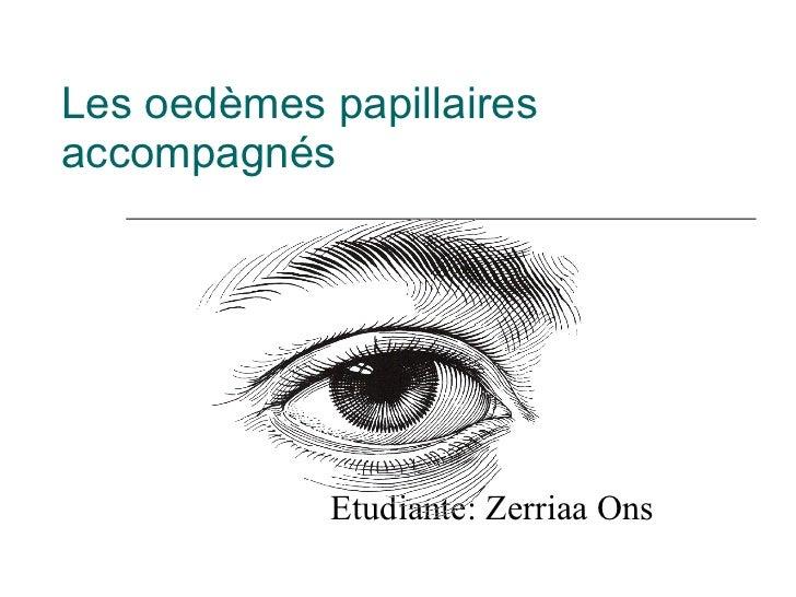 Les oedèmes papillaires accompagnés Etudiante: Zerriaa Ons
