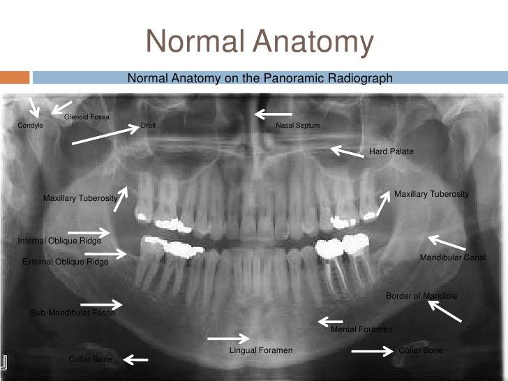 Nasal Septum Radiograph Orbit Nasal Septum Hard