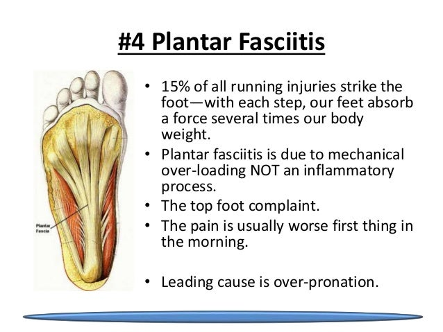 plantar fasciitis after steroid injection