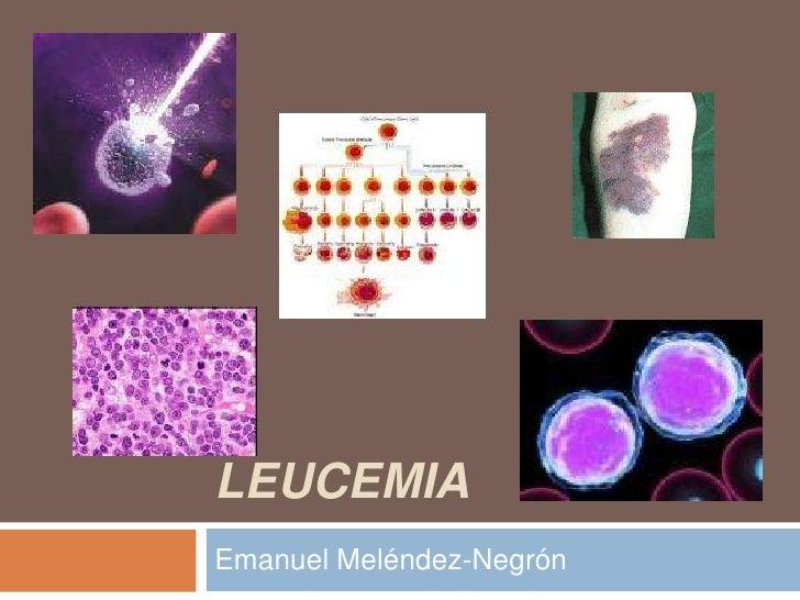 Leucemia<br />Emanuel Meléndez-Negrón  <br />