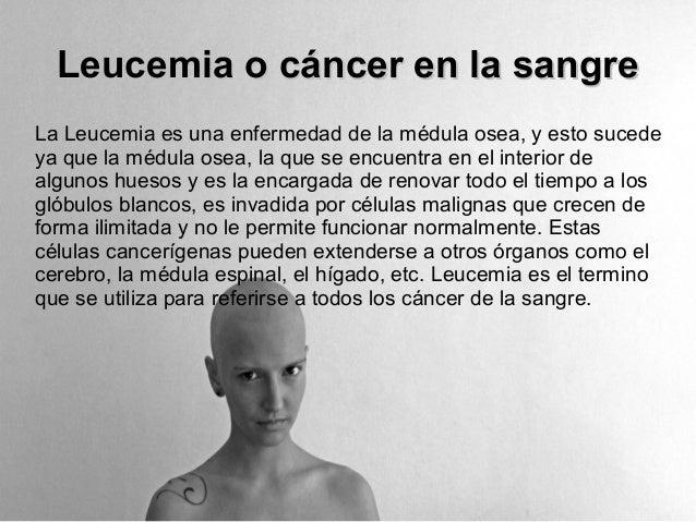 Leucemia o cáncer en la sangreLa Leucemia es una enfermedad de la médula osea, y esto sucedeya que la médula osea, la que ...