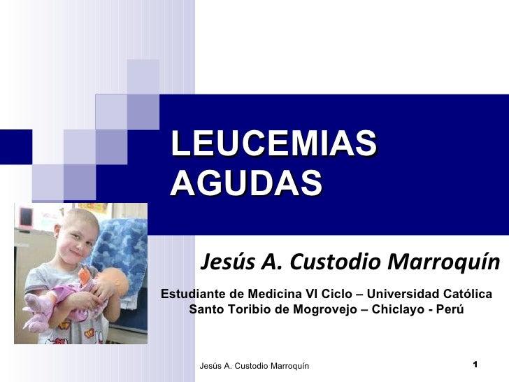 LEUCEMIAS AGUDAS Jesús A. Custodio Marroquín Jesús A. Custodio Marroquín Estudiante de Medicina VI Ciclo – Universidad Cat...