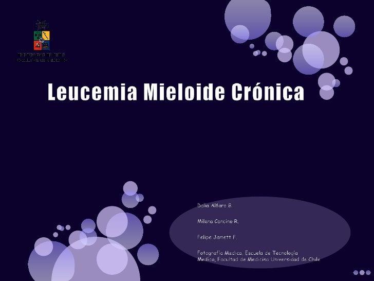 Leucemia Mieloide Crónica<br />Dalia Alfaro B.<br />Milena Cancino R.<br />Felipe Jamett F.<br />Fotografía Medica, Escuel...