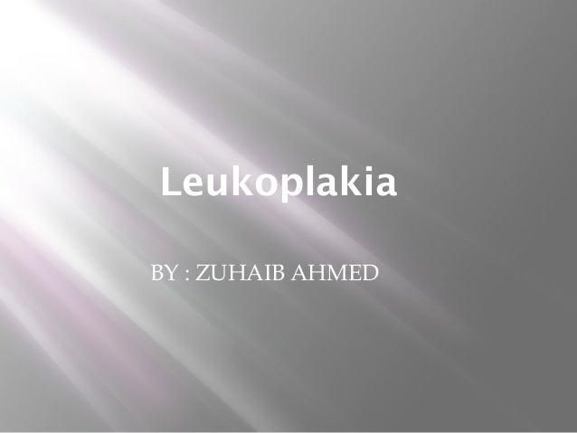 Leukoplakia BY : ZUHAIB AHMED