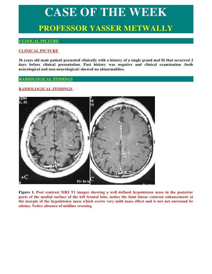 Case record... Grade II,III mixed astrocytoma