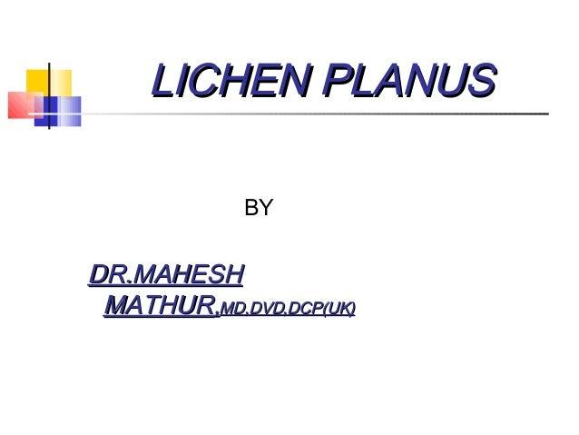 LICHEN PLANUSLICHEN PLANUS BY DR.MAHESHDR.MAHESH MATHURMATHUR,,MD,DVD,DCP(UK)MD,DVD,DCP(UK)