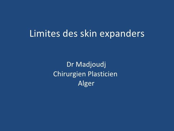 Limites des skin expanders