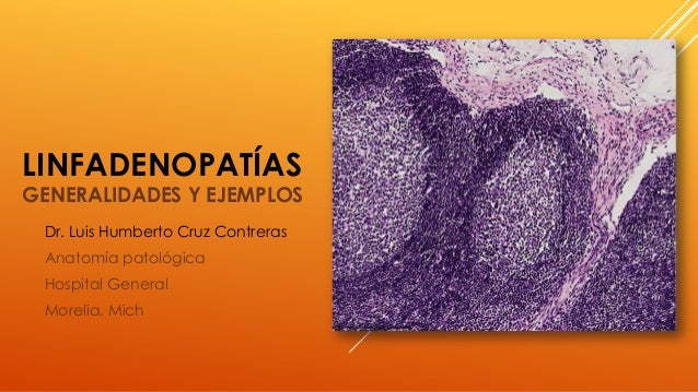 LINFADENOPATÍAS GENERALIDADES Y EJEMPLOS Dr. Luis Humberto Cruz Contreras Anatomía patológica Hospital General Morelia, Mi...