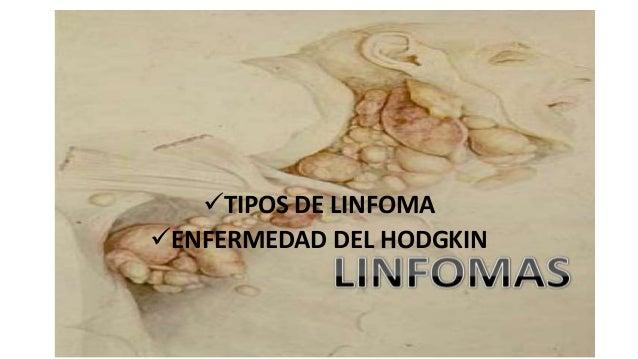linfoma tipos: