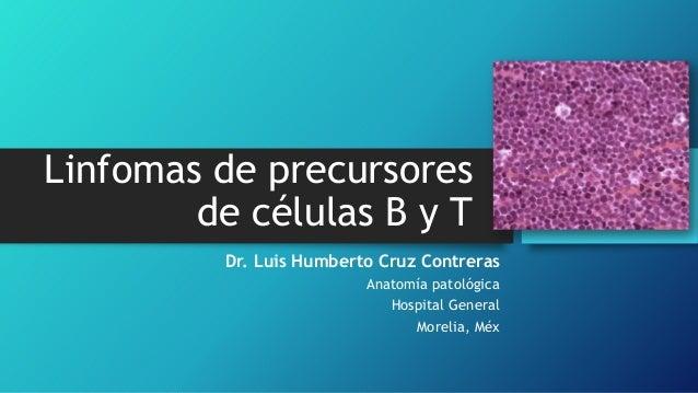Linfomas de precursores de células B y T Dr. Luis Humberto Cruz Contreras Anatomía patológica Hospital General Morelia, Méx
