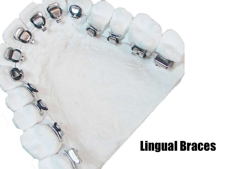 Lingual Braces Orthodontists in Grand Rapids