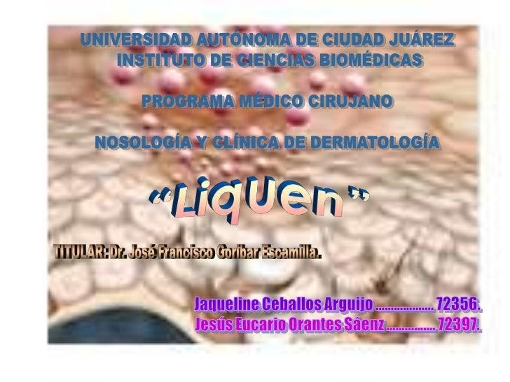 """LIQUEN PLANO• (griego, leichen = """"musgo de los árboles""""; latín  planus = """"aplanado"""").• Transtorno inflamatorio frecuente y..."""
