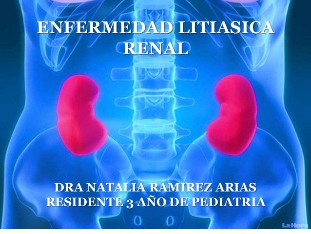 Litiasis renal en pediatria