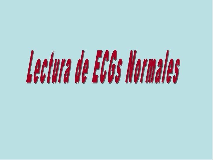 Lectura de  ECG  Normal