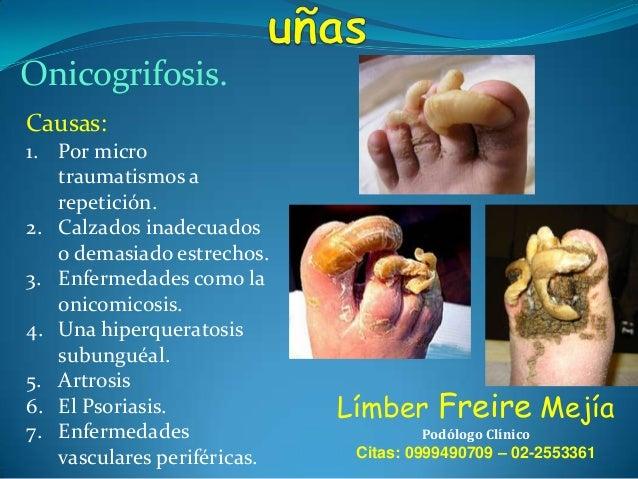 Los ungüentos de atopicheskogo de la dermatitis de la foto