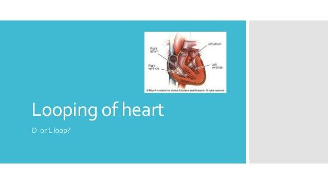 Looping of heart D or L loop?