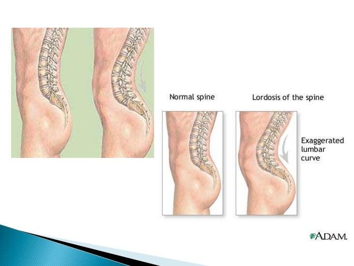 La gimnasia médica a la osteocondrosis de la columna vertebral por bubnovskomu