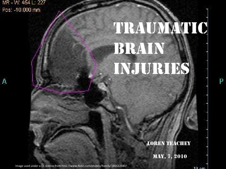 Traumatic <br />Brain Injuries<br />LOREnteachey<br />May, 7, 2010<br />Image used under a CC license from http://www.flic...