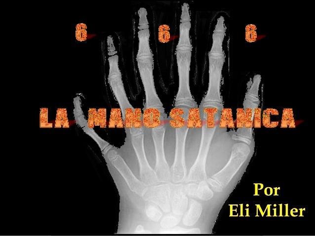 1Crónicas20:6,7 … había un hombre de grande estatura, el cual tenía seis dedos en pies y manos, veinticuatro por todos; y ...