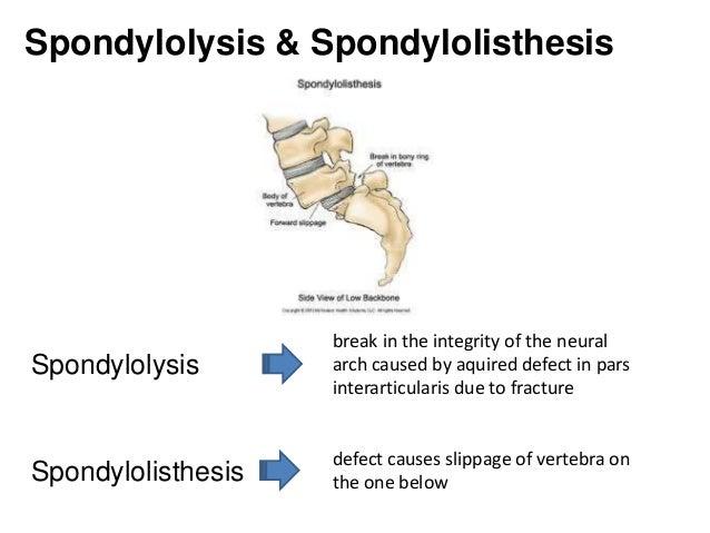 Write my spondylolisthesis slippage
