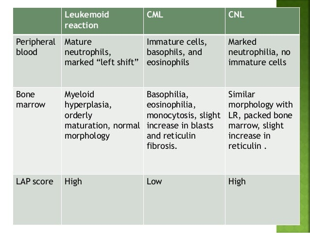 Leukemia Symptoms pictures