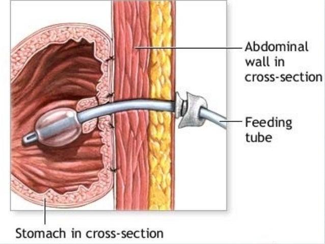 Nasogastric tube drainage nasogastric tube free-stock-illustrationcom