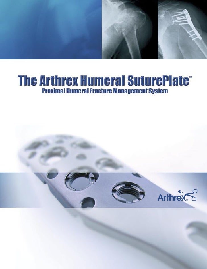 The Arthrex Humeral SuturePlate Proximal Humeral Fracture Management System                                               ...