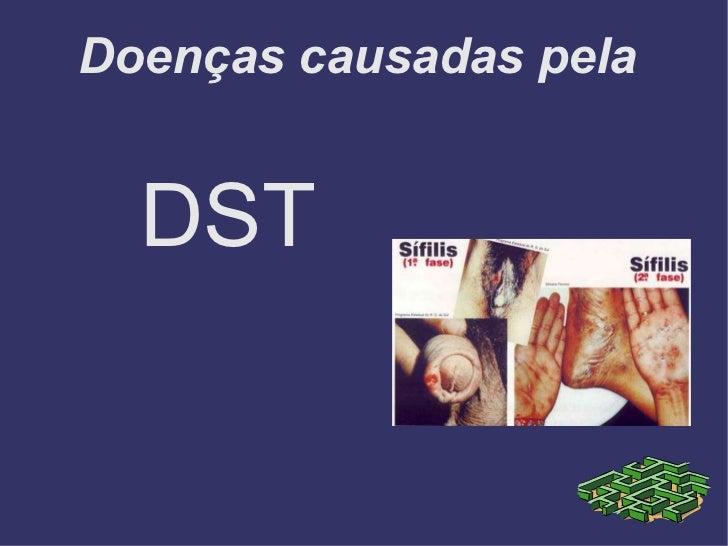 Doenças causadas pela  <ul><li>DST </li></ul>