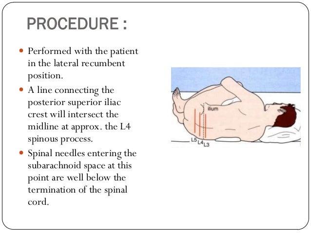 Lumbar Puncture And Bone Marrow Aspiration